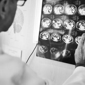 Equipos de Tomografía